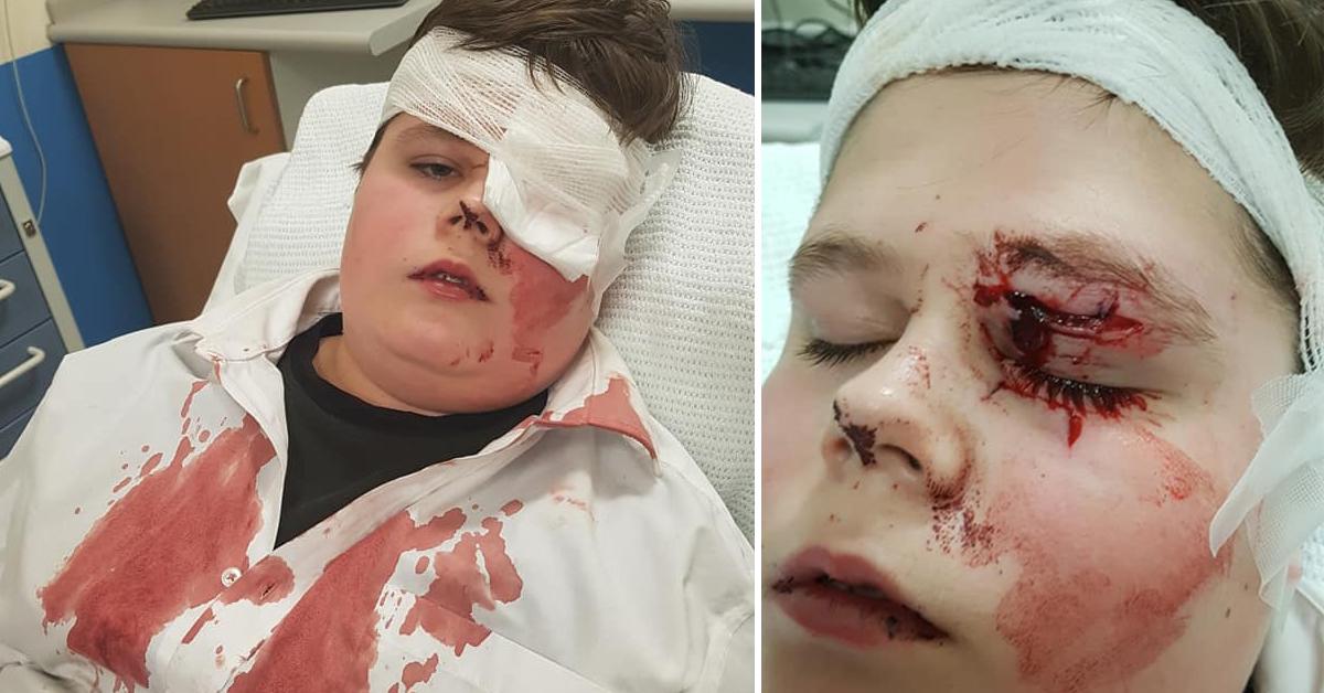 school bully assault nearly blinds teen