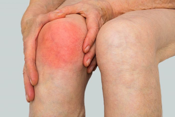 Arthritis Vaccine